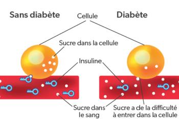 schéma-diabète-1